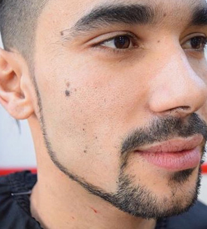 Chin strap beard style North Bristol barbers