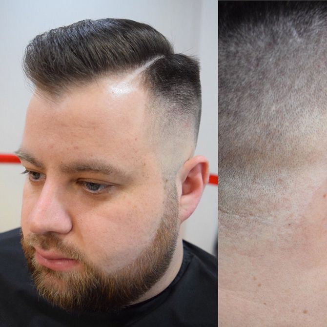 Medium skin fade with hard parting hairstyles North Bristol barbers